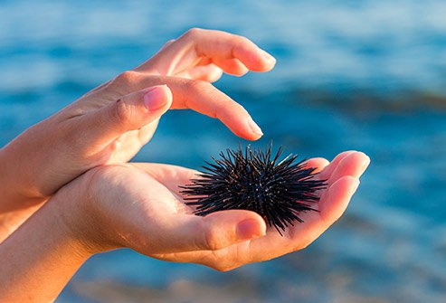 Picture of a sea urchin.
