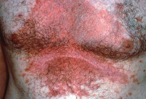 Seborrheic dermatitis causes red inflamed patches of skin.
