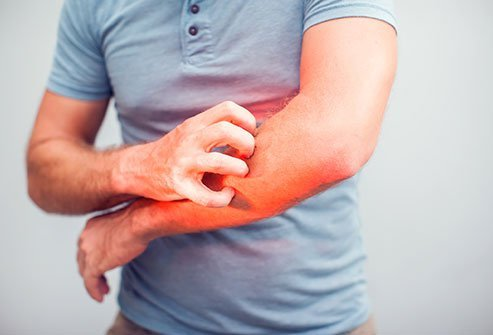 Picture of a man scratching a rash on his arm.