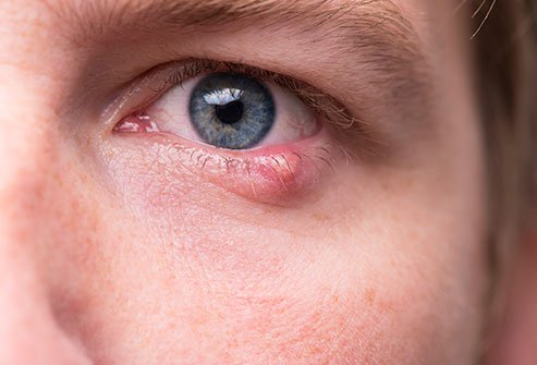 Picture of a sty on a lower eyelid.