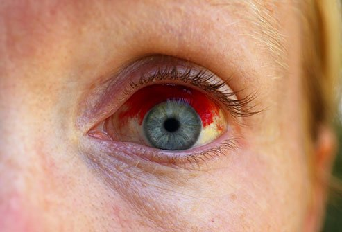 Coughing, straining, sneezing, and vomiting can cause a subconjunctival hemorrhage.