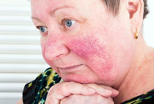 Light-skinned people with Scandinavian or Celtic heritage tend to get rosacea more frequently. It has a genetic aspect, but also may be exacerbated by skin mites.