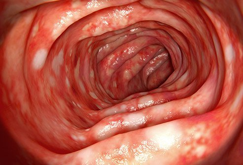 Picture of a section of the bowel affected by ulcerative colitis.