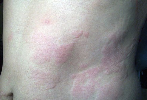 Urticaria causes intensely itchy red raised bumps on the skin.