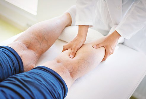 Treatments for varicose veins include several modalities and surgery.