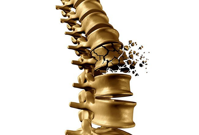 Illustration of a vertebral compression frature.