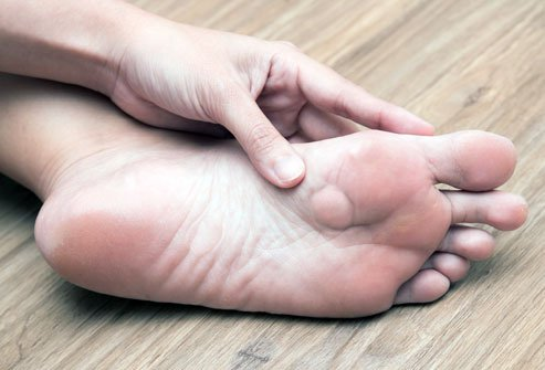 Plantar fibromatosis can be caused by genetics, medications or repetitive trauma like running.