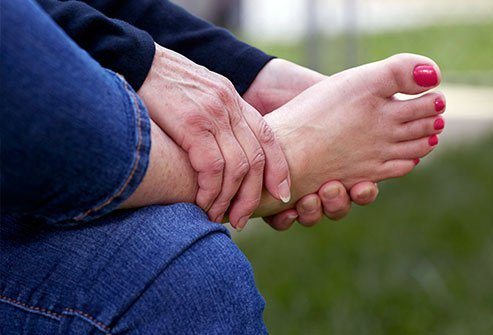 Sharp pain on the sole of the foot, limping, popping, and other symptoms may indicate a ruptured plantar fascia.