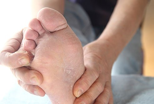 Human dermatophytes, a species of fungus, cause athlete's foot. You can get it from touching the sores of someone with ringworm, or from the soil or pets.