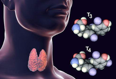 Side effects of thyroid removal are hypothyroidism (low thyroid hormone), low calcium, tremor and spasms.