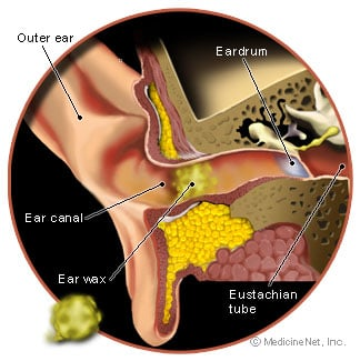 Picture of the ear and earwax build-up