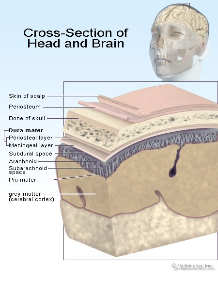 Picture of the areas of the brain subject to injury