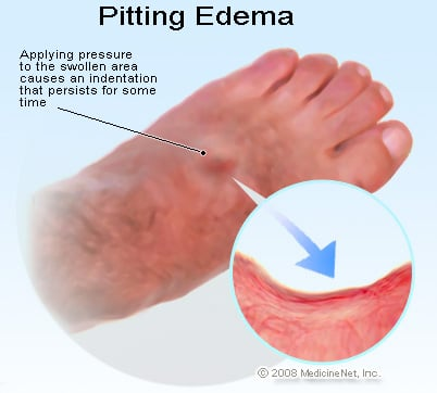 Picture of pitted edema