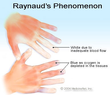 Raynaud S Phenomenon Symptoms Treatment Amp Remedies