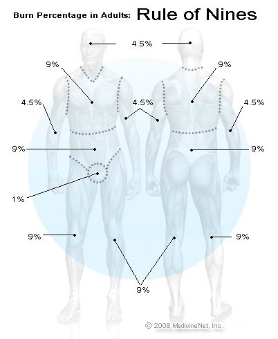 burn percentage in adults rule of nines chart rh emedicinehealth com Tbsa Burn Chart Burn Body Surface Area Diagram