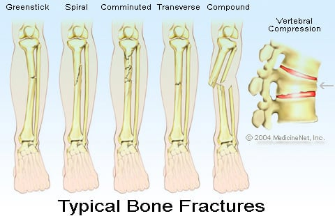 Broken Leg Treatment, Symptoms, Recovery Time & Pictures