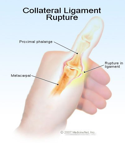 Torn Ulnar Collateral Ligament Thumb