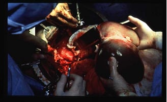 Picture of liver transplantation: A new donor liver is placed into a recipient.