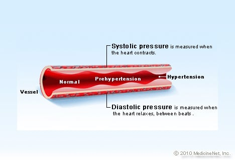 Illustration Picture Of Cardiovascular Problems Hypertension