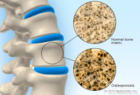 Picture of Osteoporosis