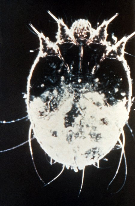 Picture of scabies mite seen under a high-power microscope lens