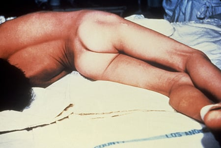 Picture of opisthotonus or arched back due to muscle spasms in a person with generalized tetanus