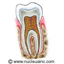 Picture of a tooth (cross section)