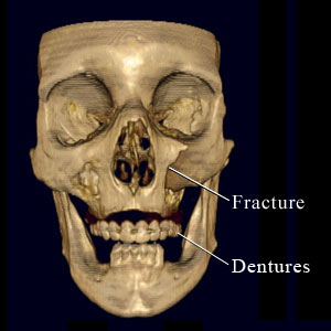 CT scan of facial fracture
