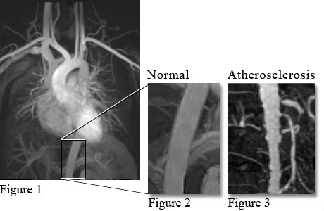 Image of MRA of vessels