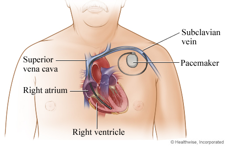 A permanent pacemaker and where it is placed