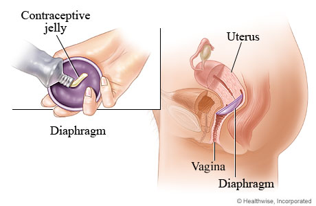 Picture of the diaphragm method of birth control