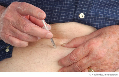 Photo of a person inserting the needle into the pinched-up area