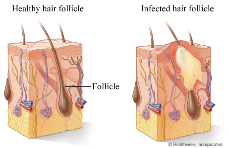 Picture of a healthy hair follicle and an infected hair follicle