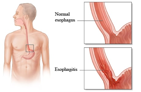 Picture of normal esophagus compared to esophagitis