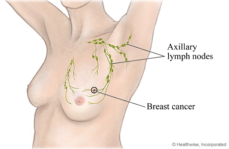 Picture of axillary lymph nodes and where they are located