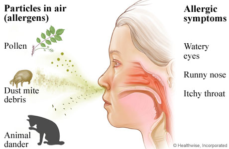 Picture of allergens and allergy symptoms