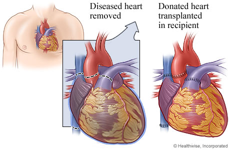 Picture of heart transplant