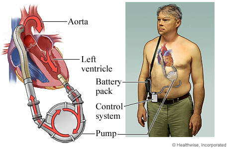 Picture of a left-ventricular assist device (LVAD)