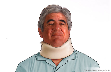 A man wearing a cervical collar