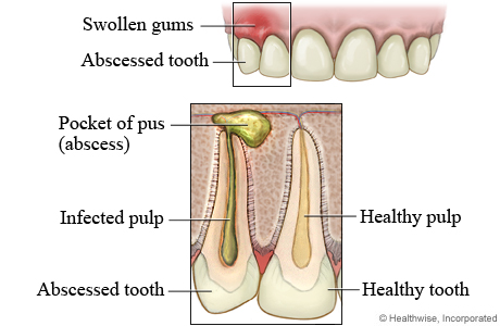 Picture of tooth abscess