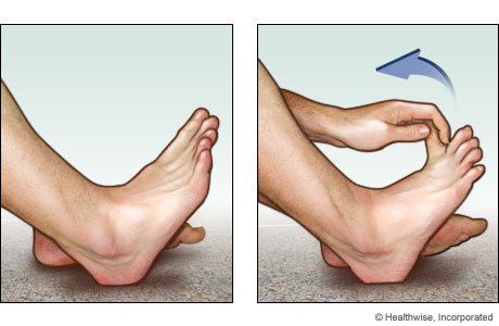 Picture of a toe stretch for the bottom of the foot