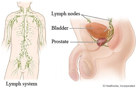 Picture of lymph nodes in the male retroperitoneum and pelvis