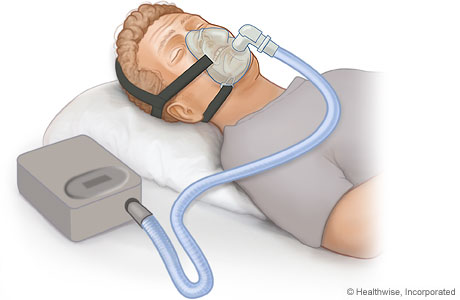 Picture of a man using a continuous positive airway pressure (CPAP) device