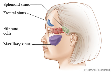 Picture of where nasal sinus cavities are located (side view)