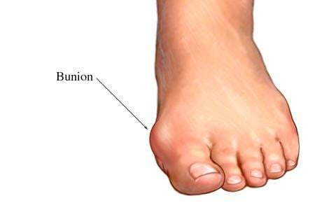 Picture of a bunion