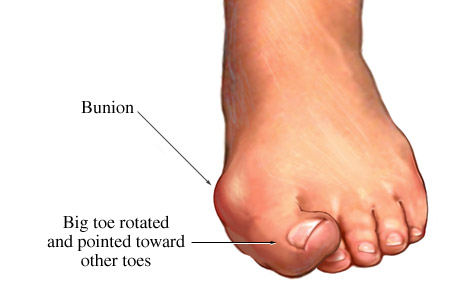 Picture of a bunion with the big toe pointed toward the other toes