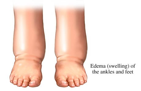 Picture of pedal edema