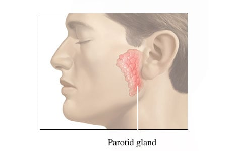 Picture of the parotid gland