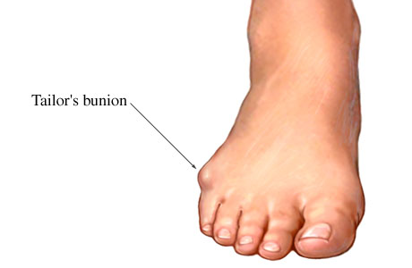 Picture of a bunionette or tailor's bunion