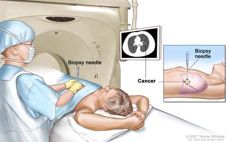 Lung biopsy; drawing shows a patient lying on a table that slides through the computed tomography (CT) machine with an x-ray picture of a cross-section of the lung on a monitor above the patient. Drawing also shows a doctor using the x-ray picture to help place the biopsy needle through the chest wall and into the area of abnormal lung tissue. Inset shows a side view of the chest cavity and lungs with the biopsy needle inserted into the area of abnormal tissue.
